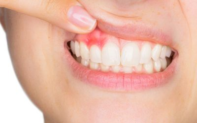 Gum Disease: It's Not Just About Your Teeth!