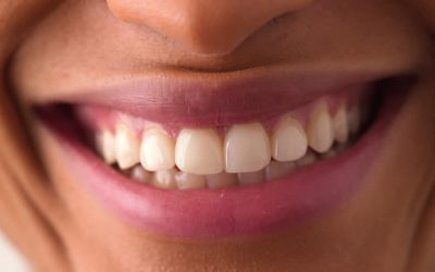 Celebrity Teeth: Before and After